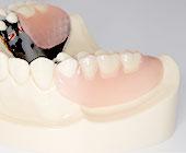 完全オーダーメイド義歯